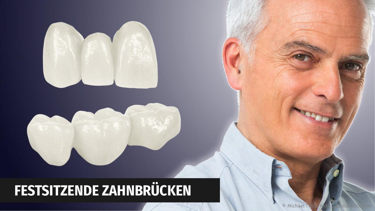 Zahnbrücken aus Keramik mit CEREC